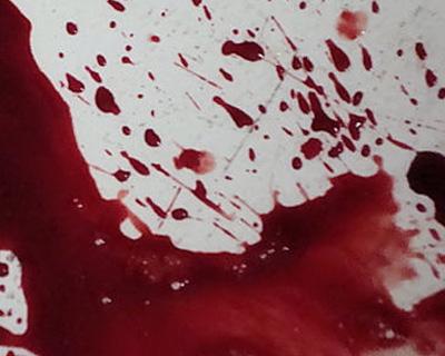 Accutane Rectal Bleeding